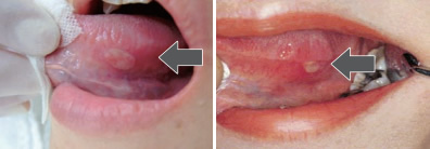 デキサメタゾン 口腔 用 軟膏 デキサメタゾンの口内炎などへの効能と副作用や強さ!市販薬も
